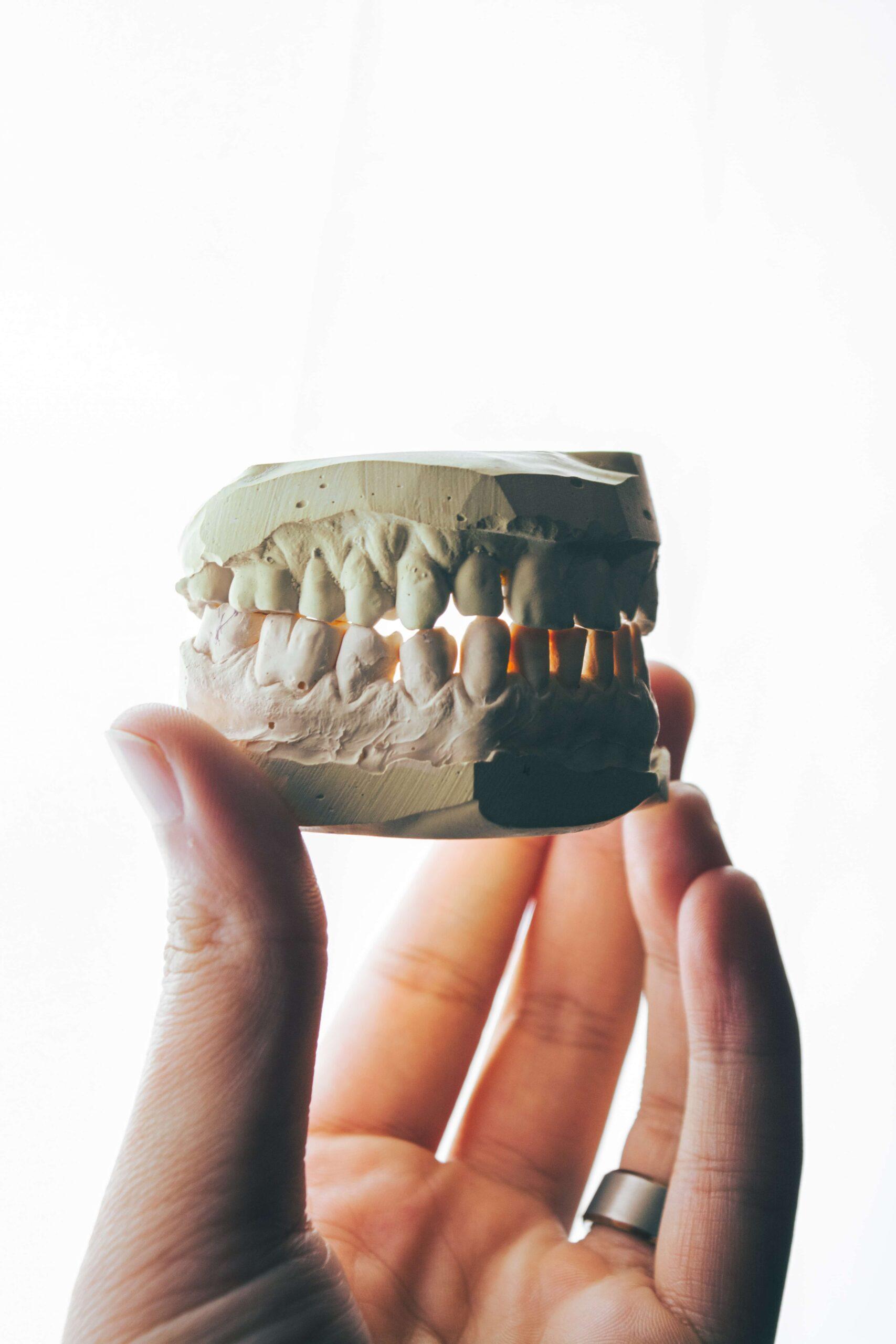 Jaki jest koszt implantów całej szczęki?
